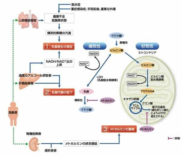 乳酸アシドーシス